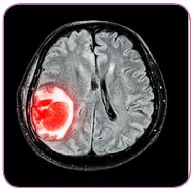 Kanserli beyin dokusu