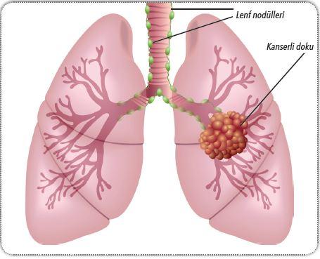 Akciğerde gelişen tümör